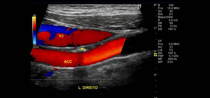 ultrassonografia-com-doppler